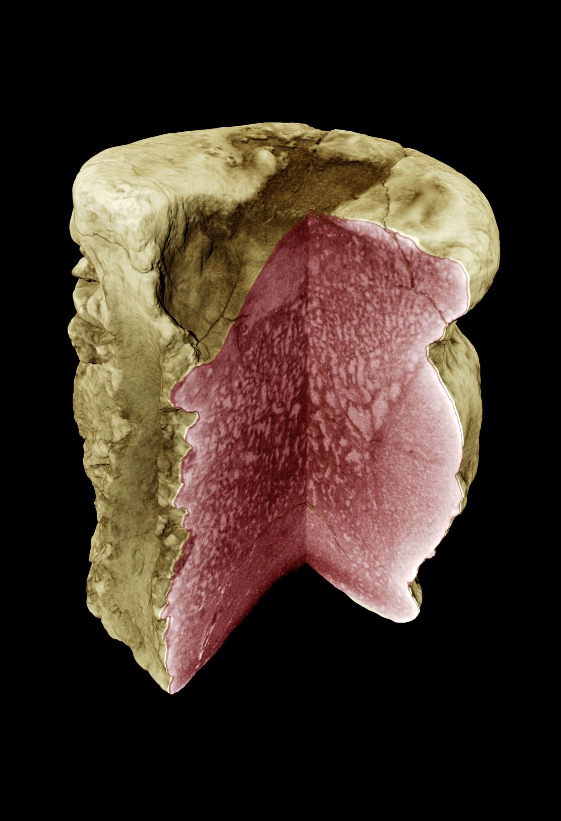 Synchrotron holotomography was used to visualise pathological structural changes in a dinosaur bone - enlarged view