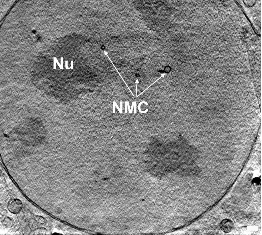Slice through the nucleus of a mouse adenocarcinoma cell<br />showing the nucleolus (NU) and the membrane channels running<br />across the nucleus (NMC); taken by X-ray nanotomography.<br />Photo: HZB/Schneider