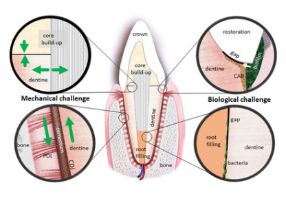 Artificial and natural interzones on a tooth restored with non-degradable biomaterials are exposed to mechanical (left: stresses acting in compression, tension and shear) and biological challenges (right: bacterial attachment, penetration, and other interactions with biological media).