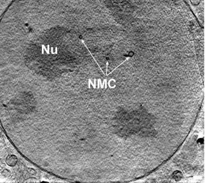 Slice through the nucleus of a mouse adenocarcinoma cellshowing the nucleolus (NU) and the membrane channels runningacross the nucleus (NMC); taken by X-ray nanotomography.Photo: HZB/Schneider